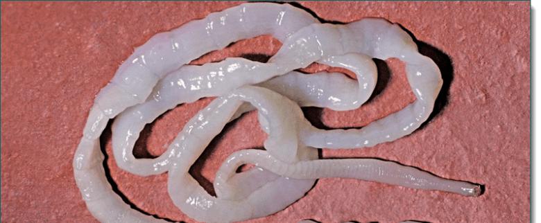 a test tisztítása agyaggal a parazitáktól a legkárosabb tabletták a férgek számára